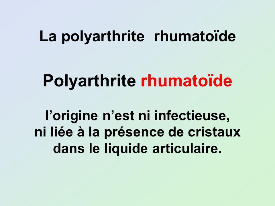 Polyarthrite rhumatoïde lorigine nest ni infectieuse, ni liée à la présence de cristaux dans le liquide articulaire. La polyarthrite rhumatoïde