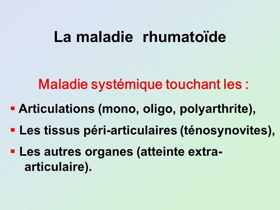 Maladie systémique touchant les : Articulations (mono, oligo, polyarthrite), Les tissus péri-articulaires (ténosynovites), Les autres organes (atteint
