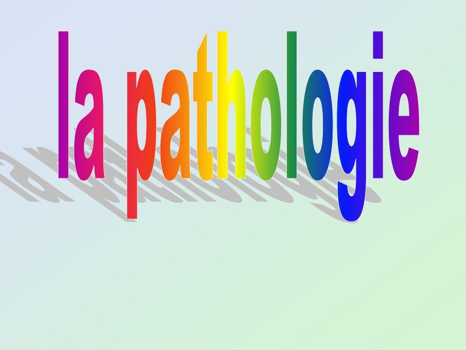Complexe majeur dhistocompatibilité ensemble des gènes situés sur le bras court du chromosome 6 HLA DRB1 04 (DR4) : 40-60% HLA DRB1 01 (DR1) : 20-30% Prédisposition génétique Système HLA