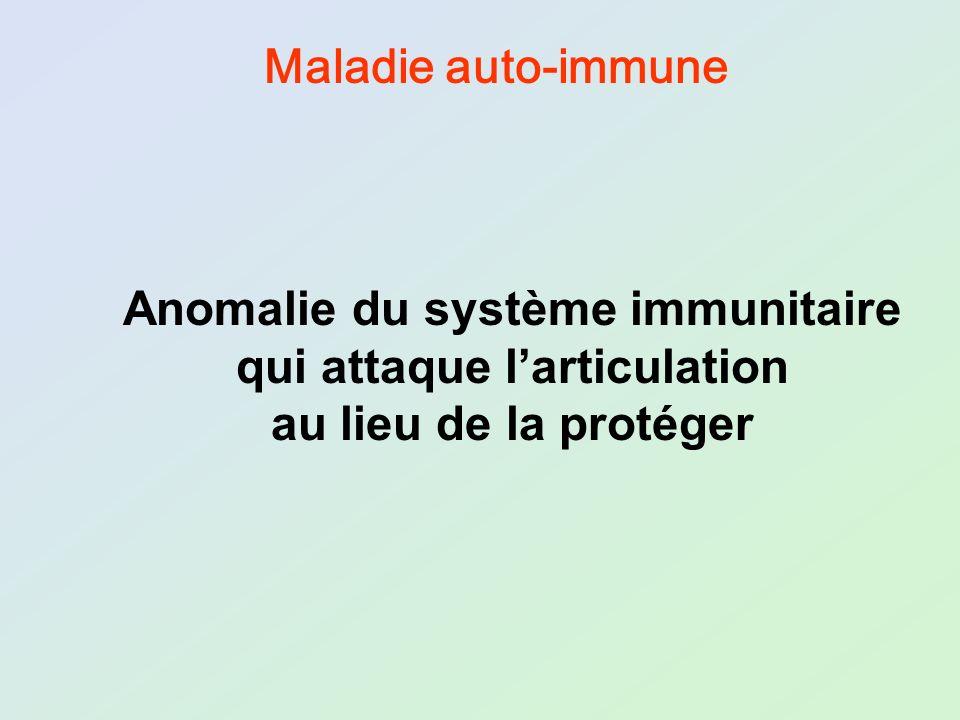 Anomalie du système immunitaire qui attaque larticulation au lieu de la protéger Maladie auto-immune