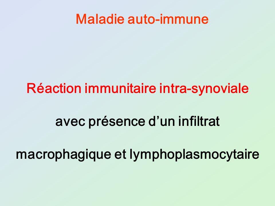 Réaction immunitaire intra-synoviale avec présence dun infiltrat macrophagique et lymphoplasmocytaire Maladie auto-immune