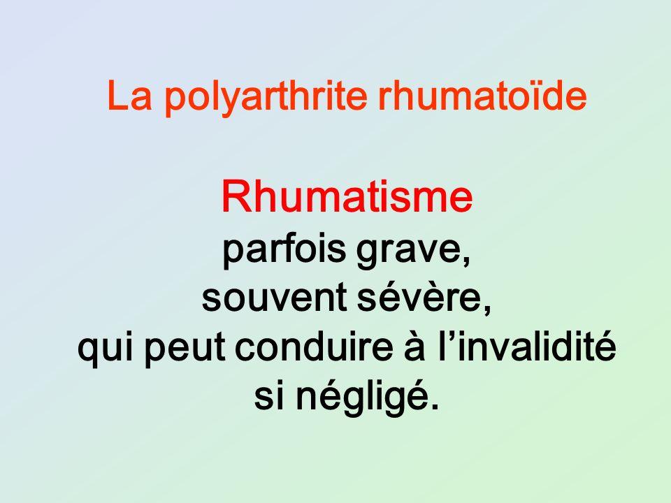 La polyarthrite rhumatoïde Rhumatisme parfois grave, souvent sévère, qui peut conduire à linvalidité si négligé.