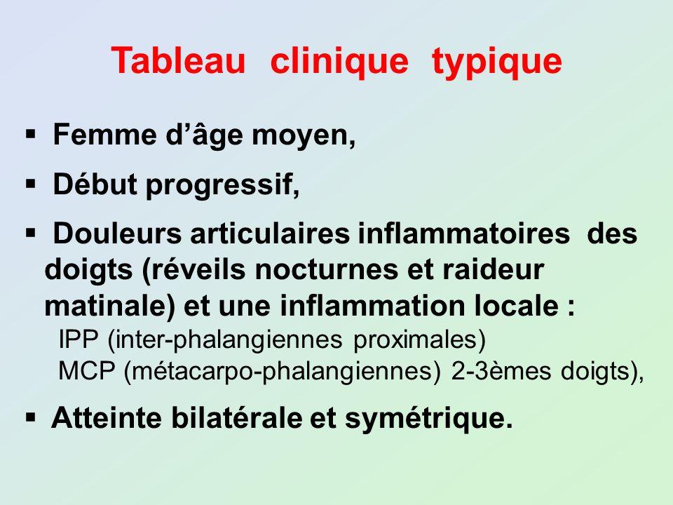 Tableau clinique typique Femme dâge moyen, Début progressif, Douleurs articulaires inflammatoires des doigts (réveils nocturnes et raideur matinale) e