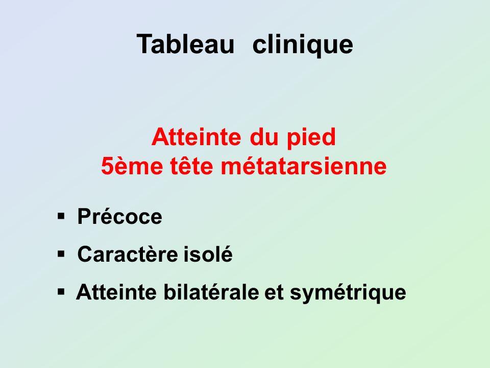 Tableau clinique Atteinte du pied 5ème tête métatarsienne Précoce Caractère isolé Atteinte bilatérale et symétrique