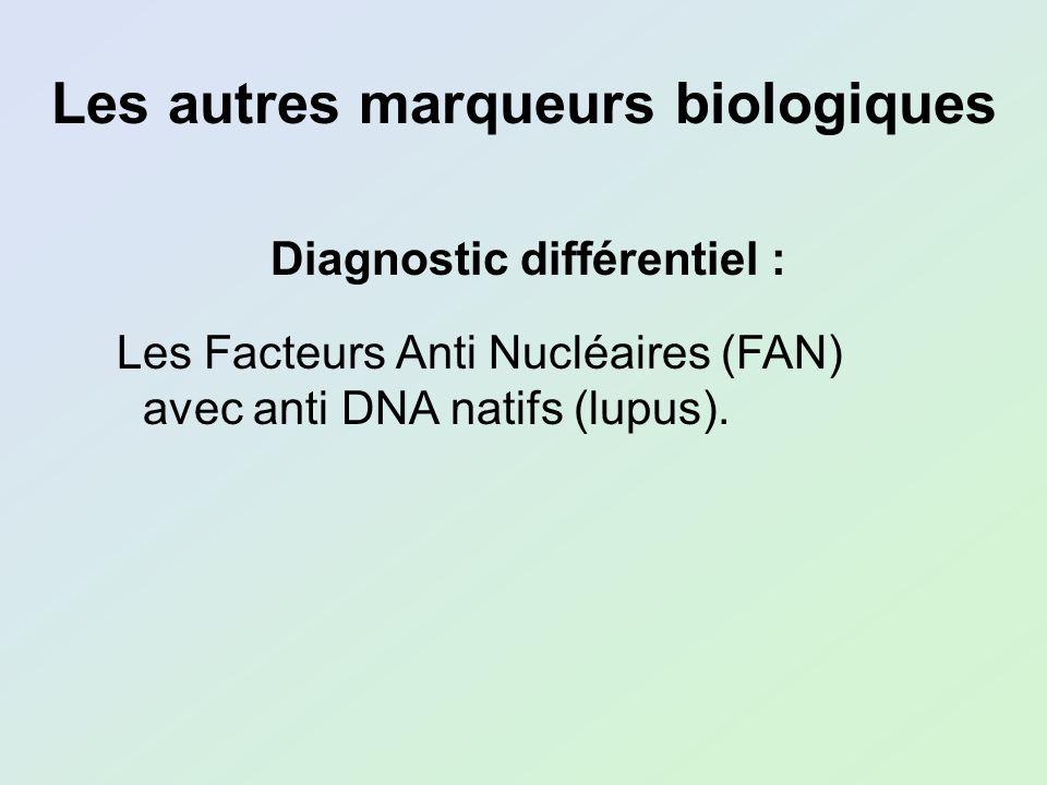 Diagnostic différentiel : Les Facteurs Anti Nucléaires (FAN) avec anti DNA natifs (lupus). Les autres marqueurs biologiques