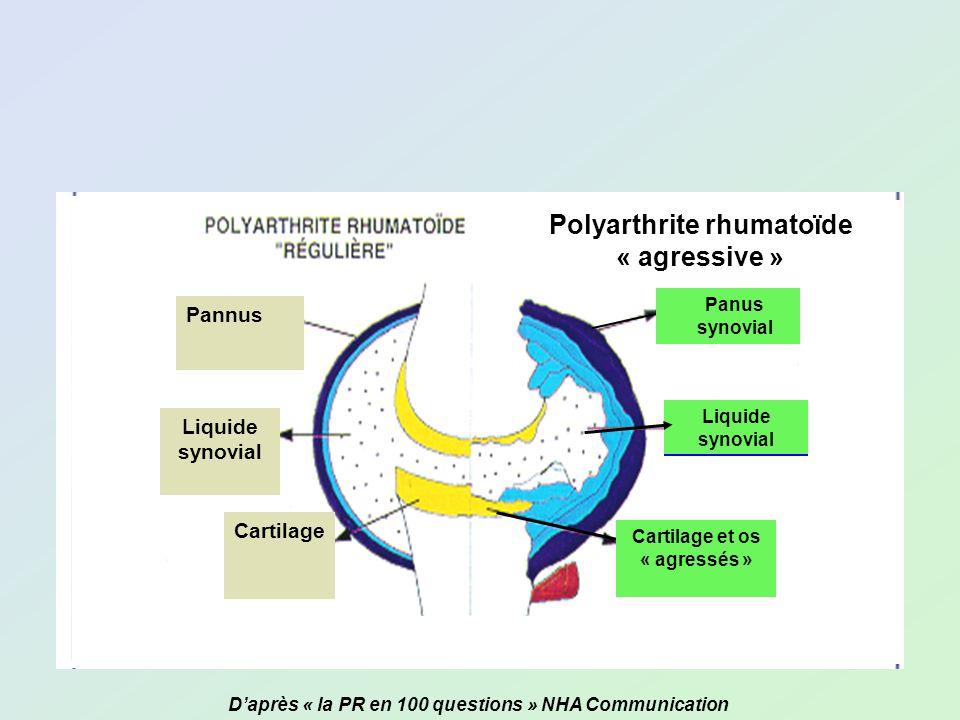Polyarthrite rhumatoïde « agressive » Panus synovial Liquide synovial Panus synovial Liquide synovial Cartilage et os « agressés » Cartilage Daprès «