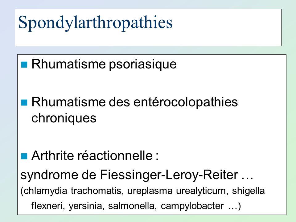 Spondylarthropathies Rhumatisme psoriasique Rhumatisme des entérocolopathies chroniques Arthrite réactionnelle : syndrome de Fiessinger-Leroy-Reiter …