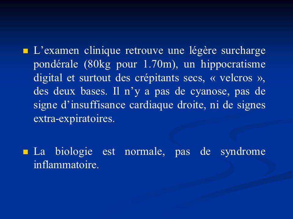 Lexamen clinique retrouve une légère surcharge pondérale (80kg pour 1.70m), un hippocratisme digital et surtout des crépitants secs, « velcros », des