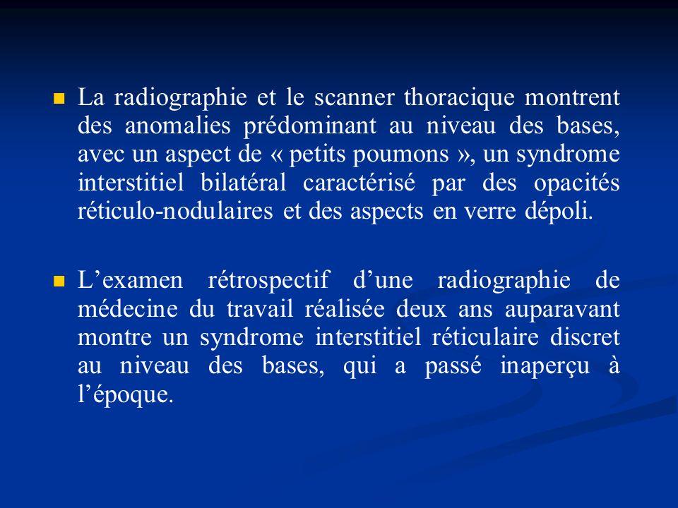 La radiographie et le scanner thoracique montrent des anomalies prédominant au niveau des bases, avec un aspect de « petits poumons », un syndrome int