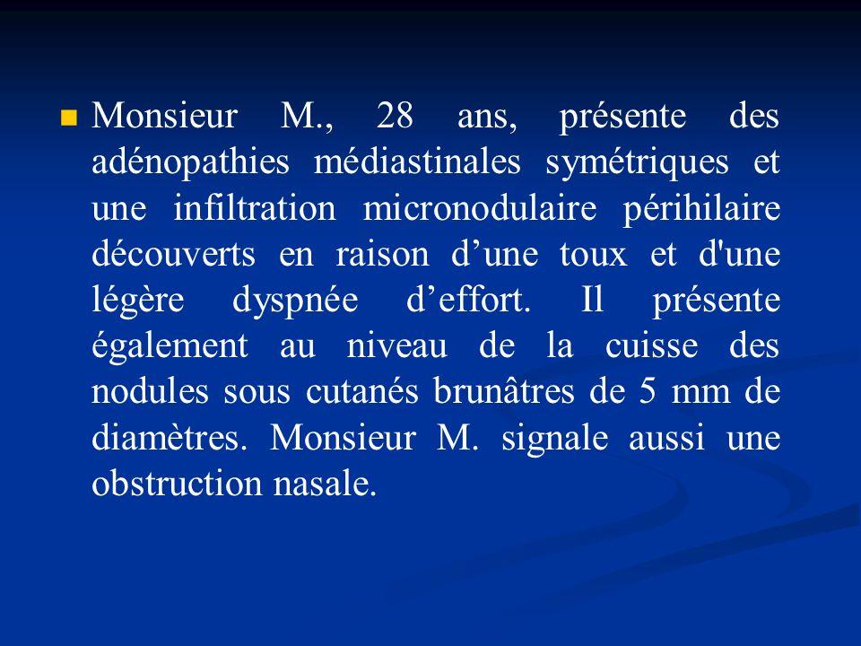 Monsieur M., 28 ans, présente des adénopathies médiastinales symétriques et une infiltration micronodulaire périhilaire découverts en raison dune toux