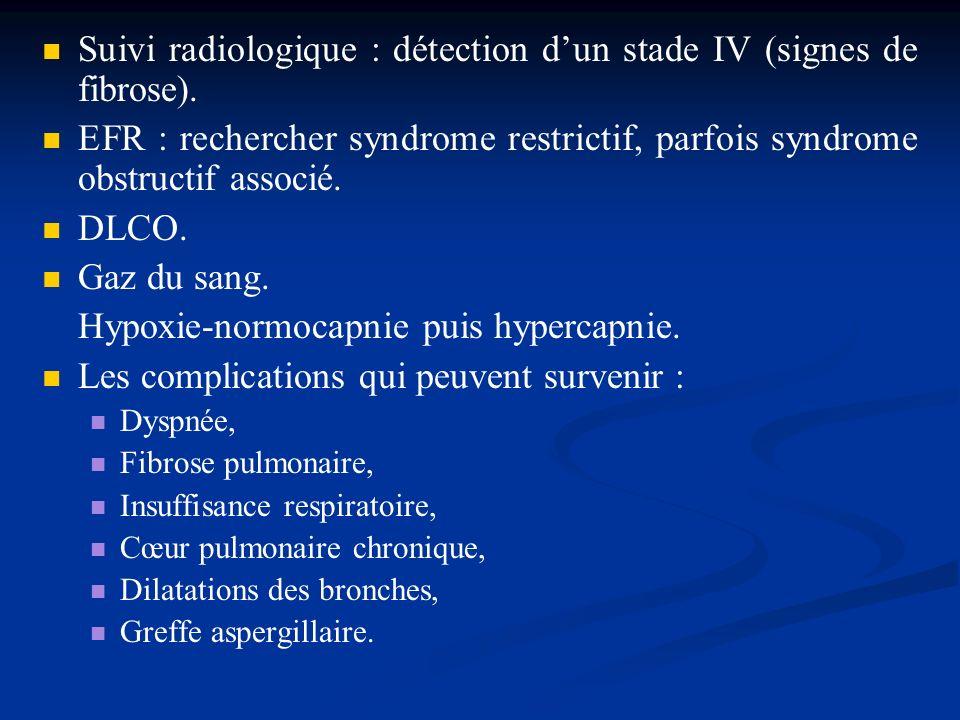 Suivi radiologique : détection dun stade IV (signes de fibrose). EFR : rechercher syndrome restrictif, parfois syndrome obstructif associé. DLCO. Gaz