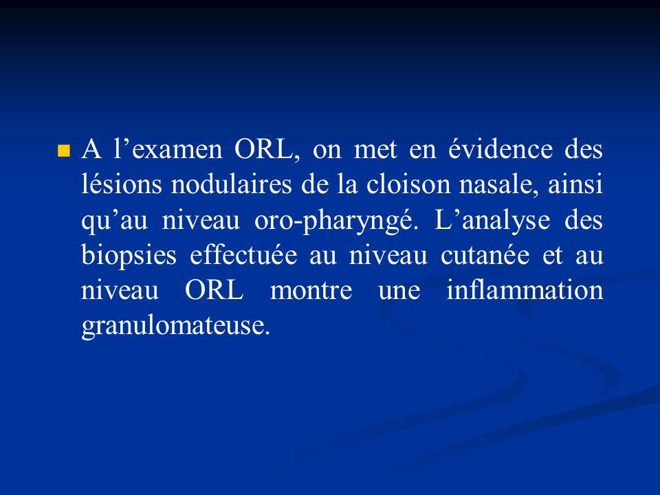 A lexamen ORL, on met en évidence des lésions nodulaires de la cloison nasale, ainsi quau niveau oro-pharyngé. Lanalyse des biopsies effectuée au nive