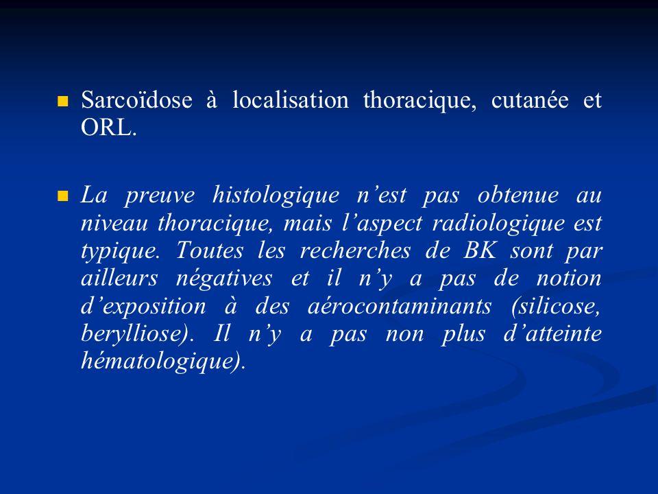 Sarcoïdose à localisation thoracique, cutanée et ORL. La preuve histologique nest pas obtenue au niveau thoracique, mais laspect radiologique est typi