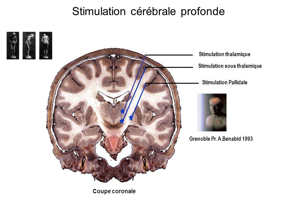 Coupe coronale Stimulation thalamique Stimulation sous thalamique Stimulation Pallidale Grenoble Pr. A.Benabid 1993 Stimulation cérébrale profonde