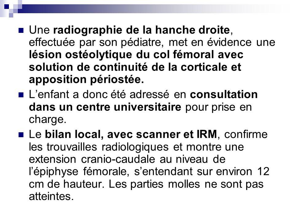Une radiographie de la hanche droite, effectuée par son pédiatre, met en évidence une lésion ostéolytique du col fémoral avec solution de continuité d