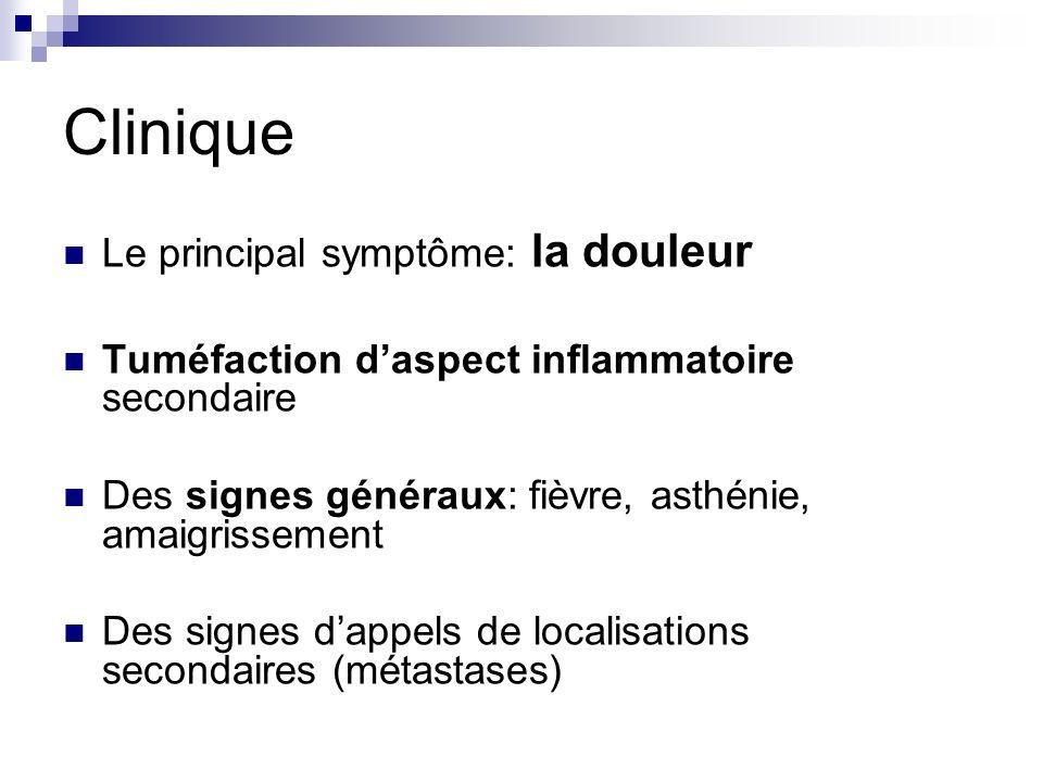 Clinique Le principal symptôme: la douleur Tuméfaction daspect inflammatoire secondaire Des signes généraux: fièvre, asthénie, amaigrissement Des sign