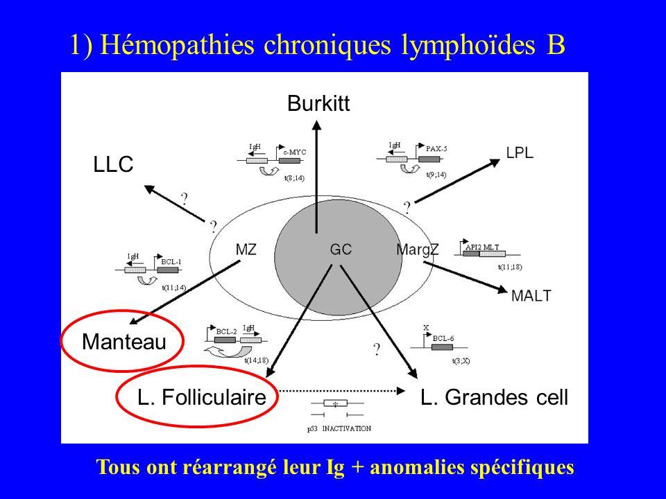 LLC Manteau Burkitt L. FolliculaireL. Grandes cell 1) Hémopathies chroniques lymphoïdes B Tous ont réarrangé leur Ig + anomalies spécifiques