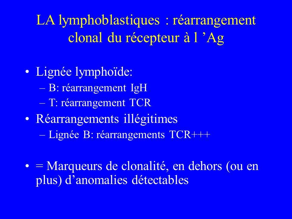 LA lymphoblastiques : réarrangement clonal du récepteur à l Ag Lignée lymphoïde: –B: réarrangement IgH –T: réarrangement TCR Réarrangements illégitime