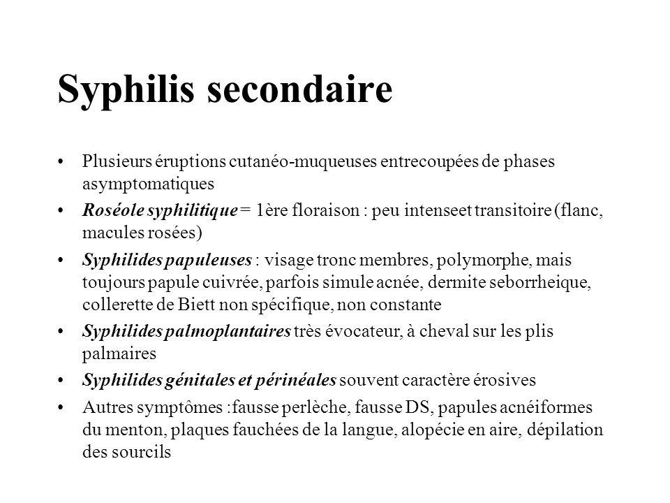 Syphilis secondaire Signes généraux : –fièvre –céphalée –sd méningé –polyADP –HSM –polyarthralgie –douleurs lancinantes osseuses (ostéocopes) –AEG –manifestations ophtalmo (névrite papillite uvéite)