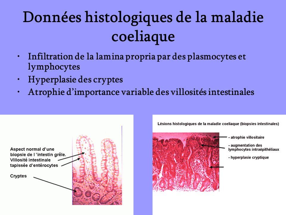 Données histologiques de la maladie coeliaque Infiltration de la lamina propria par des plasmocytes et lymphocytes Hyperplasie des cryptes Atrophie di