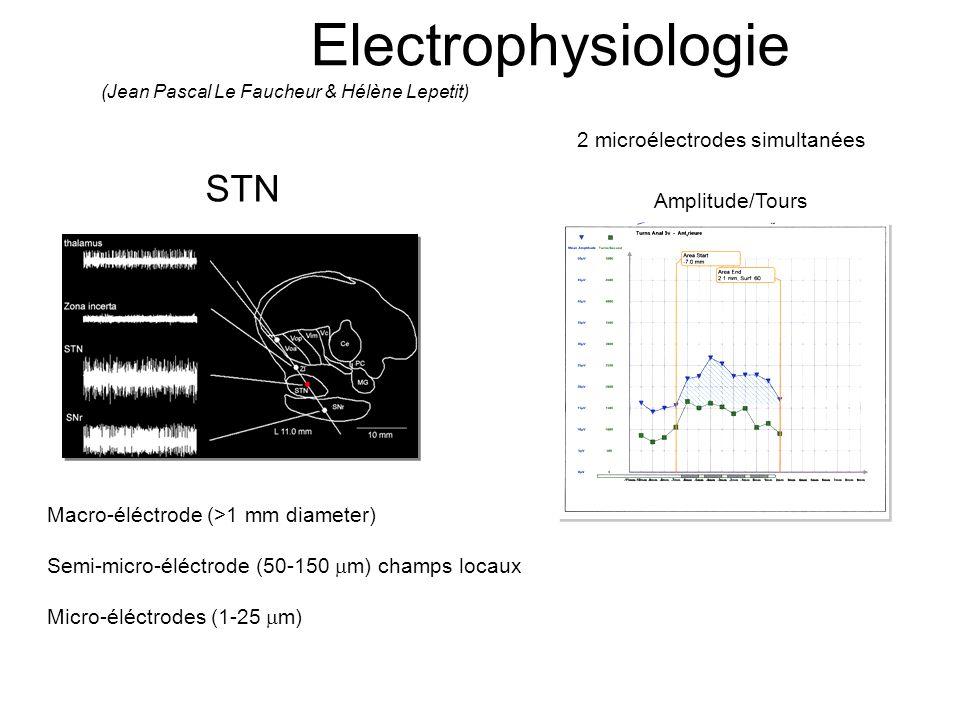 Electrophysiologie STN Macro-éléctrode (>1 mm diameter) Semi-micro-éléctrode (50-150 m) champs locaux Micro-éléctrodes (1-25 m) (Jean Pascal Le Fauche