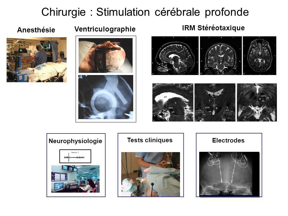 Chirurgie : Stimulation cérébrale profonde Neurophysiologie IRM Stéréotaxique Ventriculographie Tests cliniques Anesthésie Electrodes