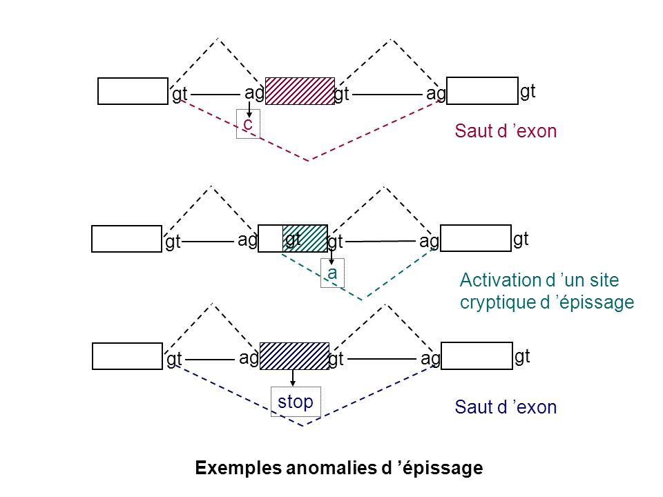 Exemples anomalies d épissage gt ag c gt ag a gt ag stop gt Saut d exon Activation d un site cryptique d épissage Saut d exon