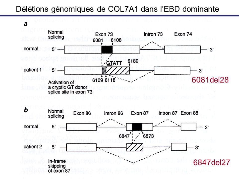 6081del28 6847del27 Délétions génomiques de COL7A1 dans lEBD dominante