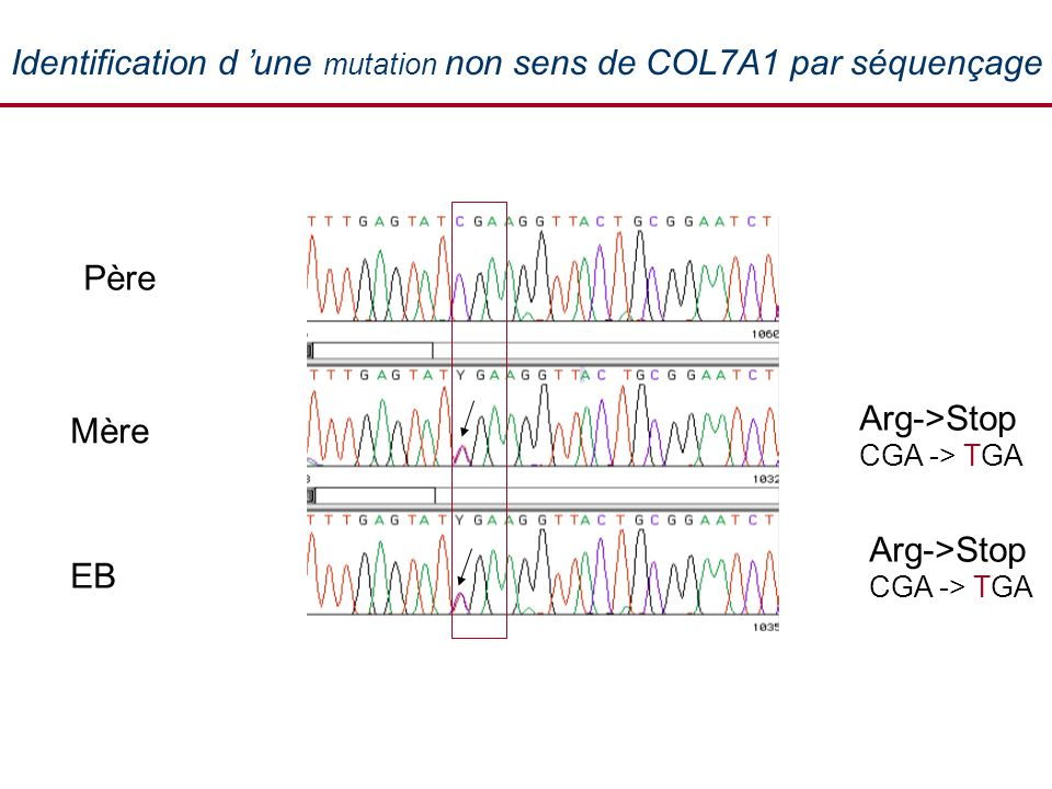 Identification d une mutation non sens de COL7A1 par séquençage Arg->Stop CGA -> TGA EB Mère Père Tropho Arg->Stop CGA -> TGA