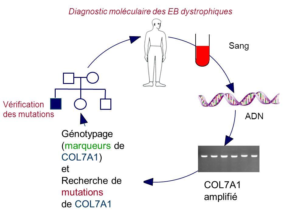 ADN Génotypage (marqueurs de COL7A1) et Recherche de mutations de COL7A1 COL7A1 amplifié Sang Diagnostic moléculaire des EB dystrophiques Vérification