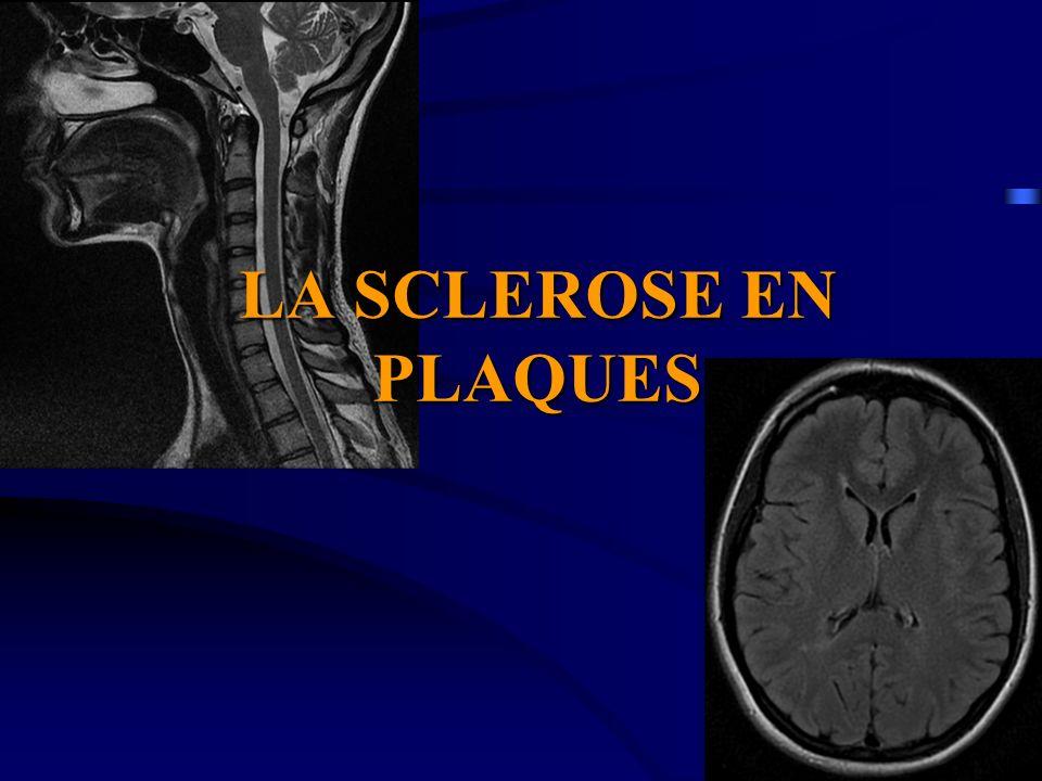 PLAN 1.Définition 2. Étiologie 3. Diagnostic de la SEP 4.