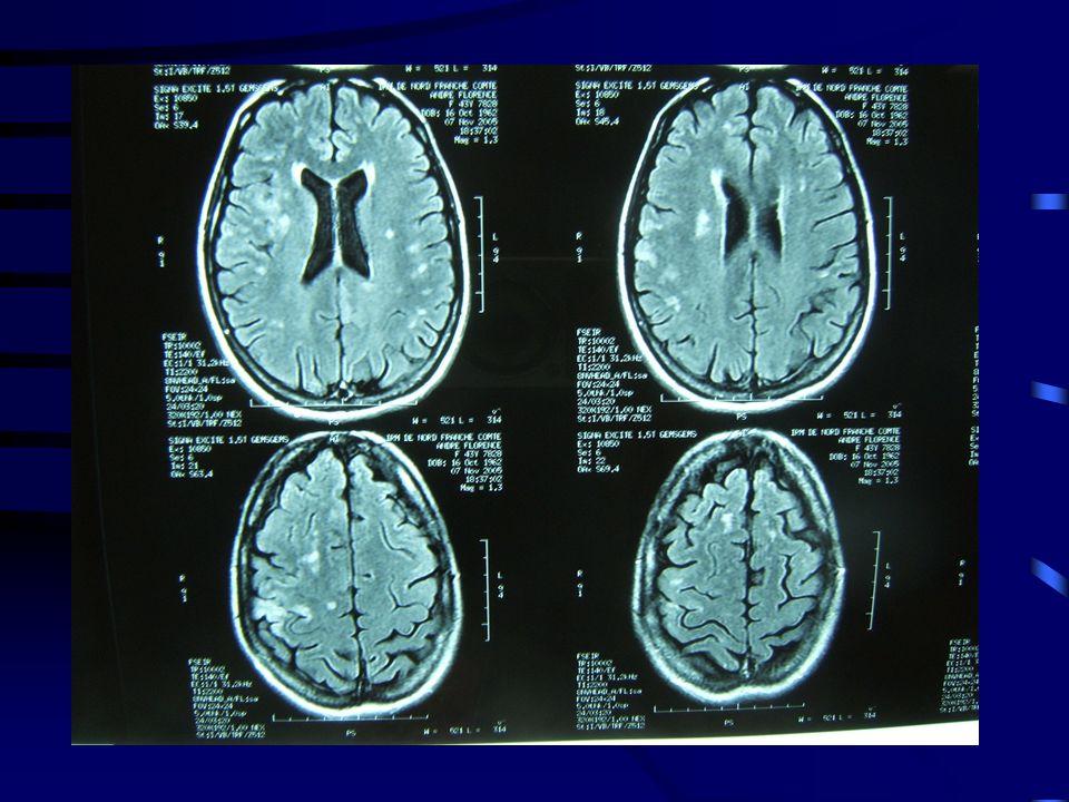 3.d.Examens paracliniques: α. Imagerie : lIRM β.