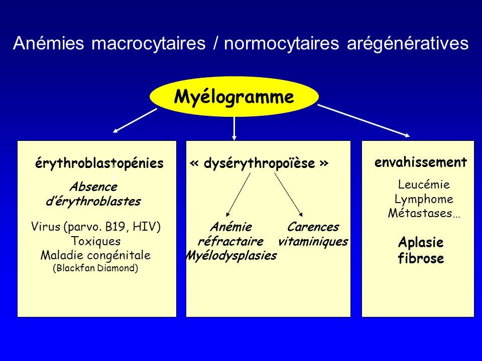 Myélogramme érythroblastopénies« dysérythropoïèse » Absence dérythroblastes Anémie réfractaire Myélodysplasies Virus (parvo. B19, HIV) Toxiques Maladi