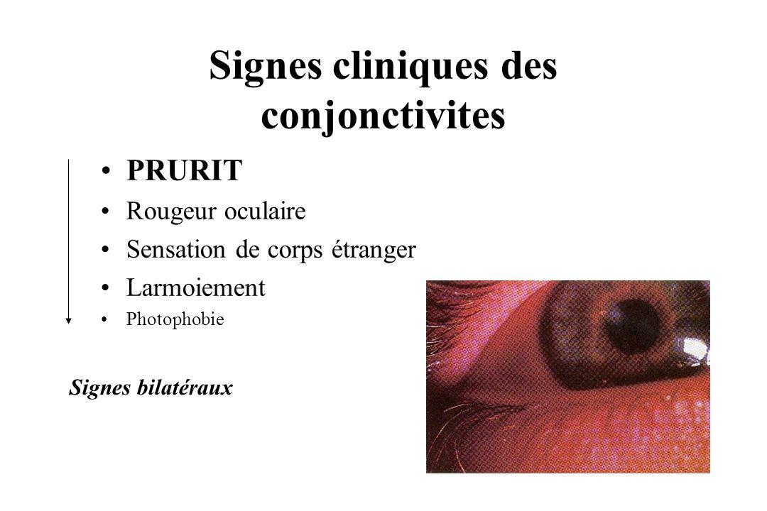 Signes cliniques des conjonctivites PRURIT Rougeur oculaire Sensation de corps étranger Larmoiement Photophobie Signes bilatéraux