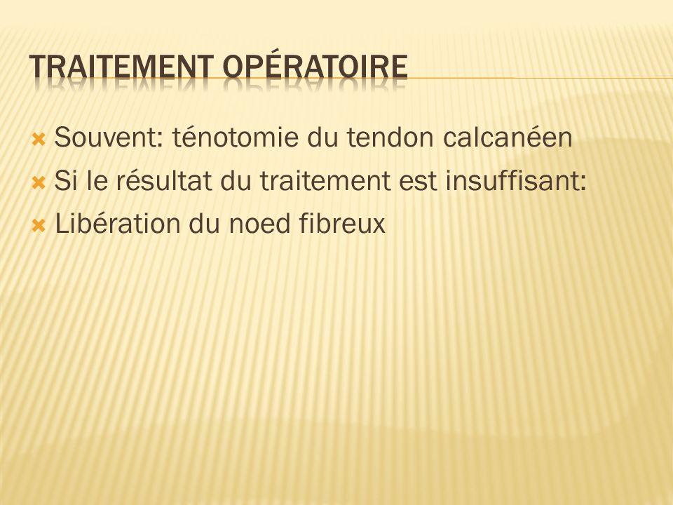 Souvent: ténotomie du tendon calcanéen Si le résultat du traitement est insuffisant: Libération du noed fibreux