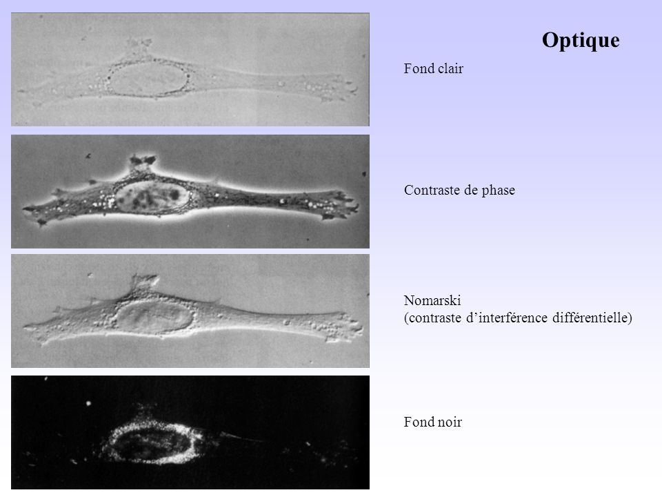 Fond clair Contraste de phase Nomarski (contraste dinterférence différentielle) Fond noir Optique