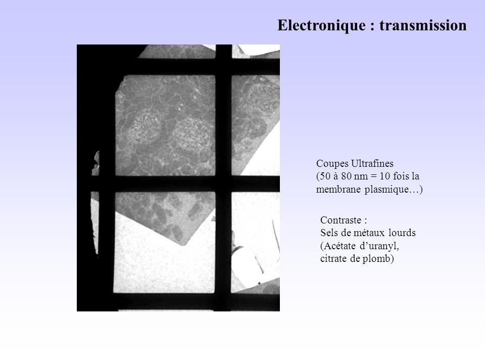 Electronique : transmission Coupes Ultrafines (50 à 80 nm = 10 fois la membrane plasmique…) Contraste : Sels de métaux lourds (Acétate duranyl, citrate de plomb)