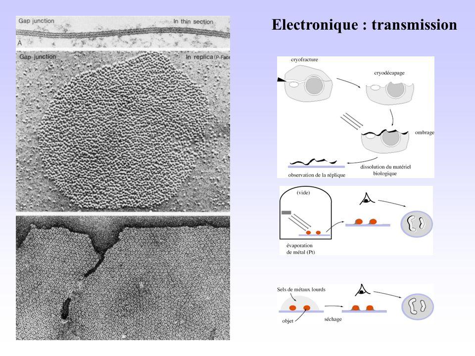Electronique : transmission