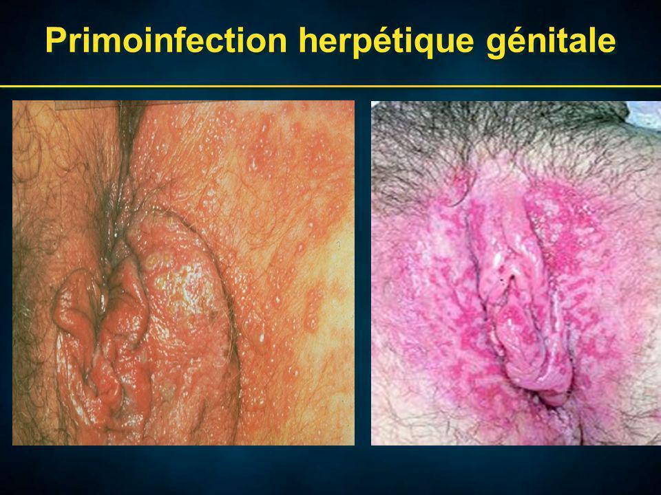 Primoinfection herpétique génitale