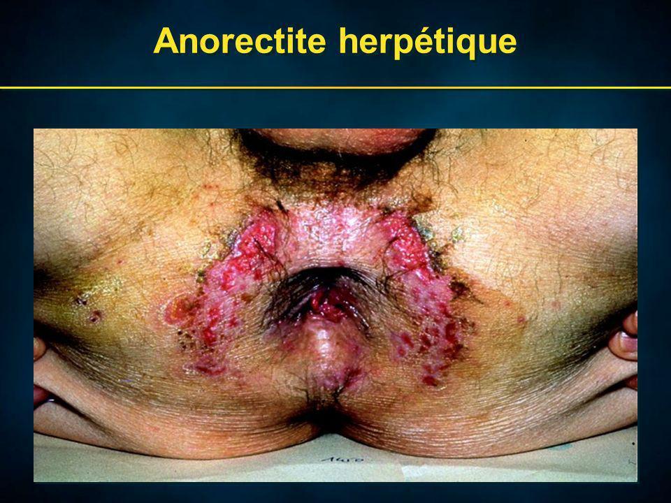 Anorectite herpétique