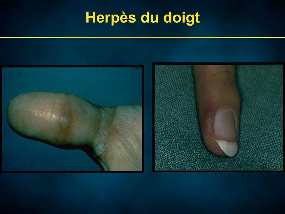Herpès du doigt