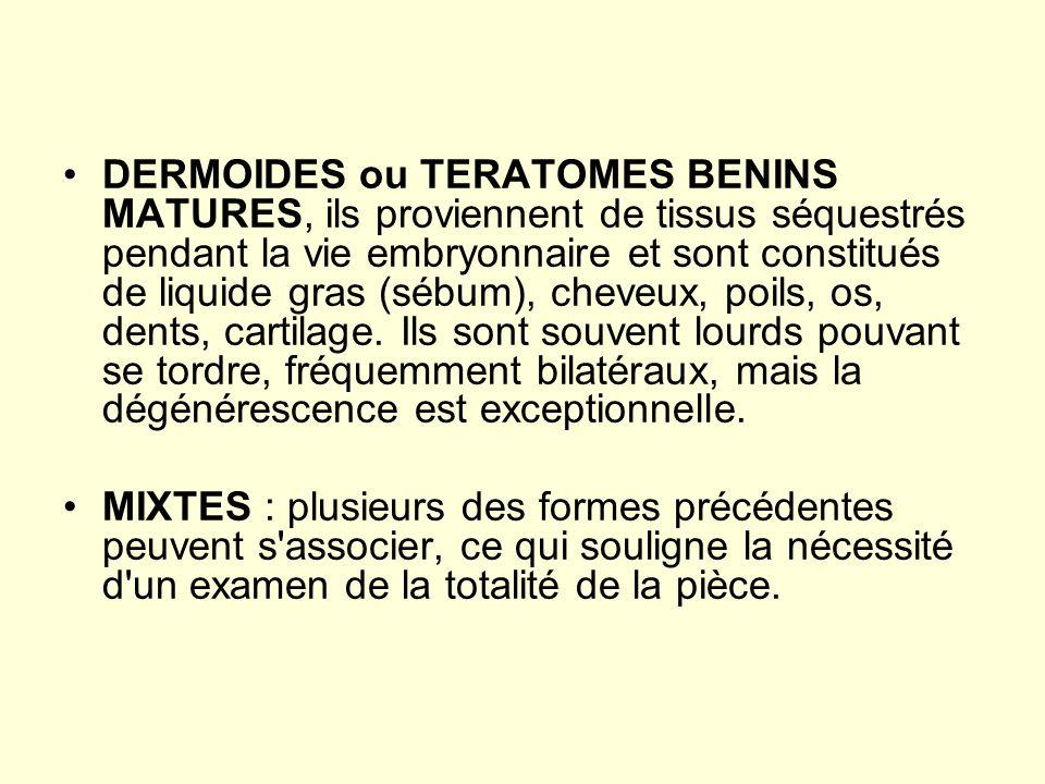 DERMOIDES ou TERATOMES BENINS MATURES, ils proviennent de tissus séquestrés pendant la vie embryonnaire et sont constitués de liquide gras (sébum), ch