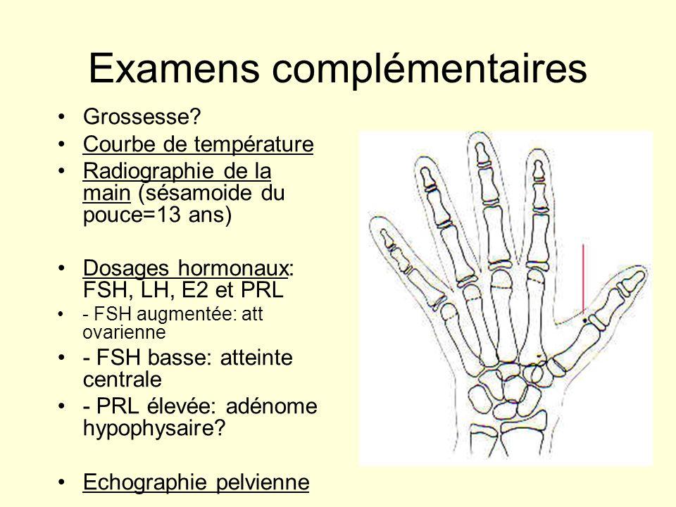 Examens complémentaires Grossesse? Courbe de température Radiographie de la main (sésamoide du pouce=13 ans) Dosages hormonaux: FSH, LH, E2 et PRL - F