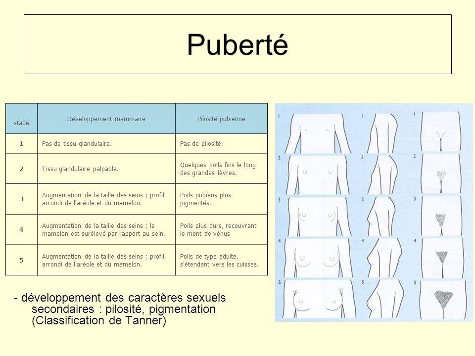 Puberté - développement des caractères sexuels secondaires : pilosité, pigmentation (Classification de Tanner) stade Développement mammairePilosité pu