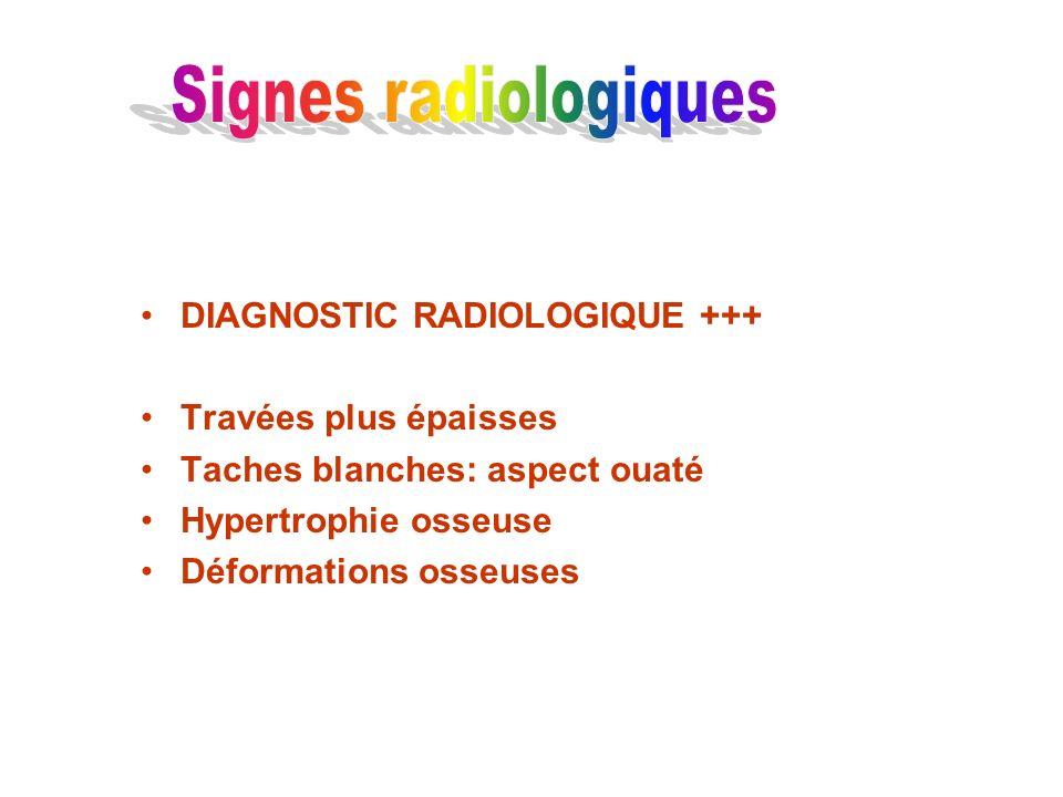 DIAGNOSTIC RADIOLOGIQUE +++ Travées plus épaisses Taches blanches: aspect ouaté Hypertrophie osseuse Déformations osseuses
