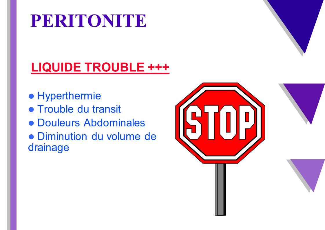 PERITONITE LIQUIDE TROUBLE +++ Hyperthermie Trouble du transit Douleurs Abdominales Diminution du volume de drainage drainage