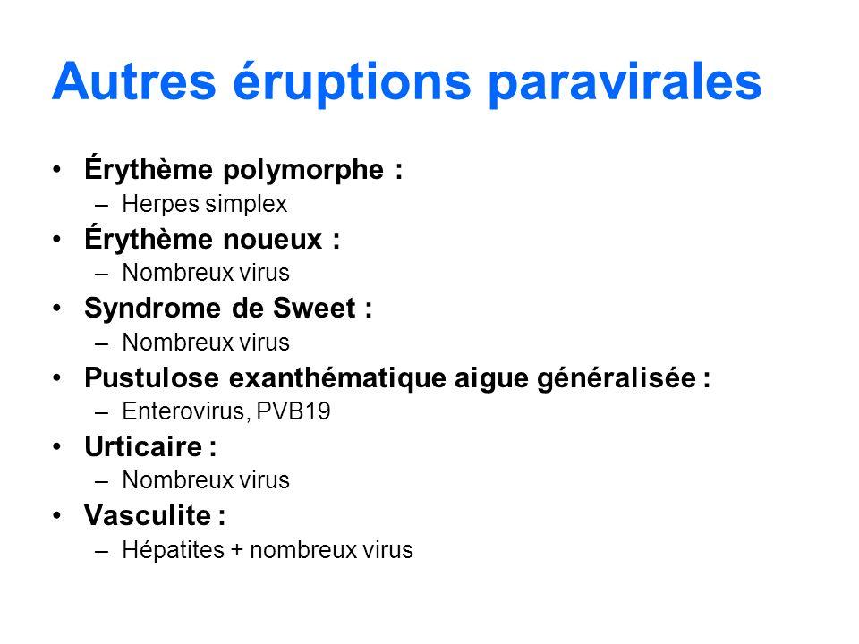 Autres éruptions paravirales Érythème polymorphe : –Herpes simplex Érythème noueux : –Nombreux virus Syndrome de Sweet : –Nombreux virus Pustulose exa