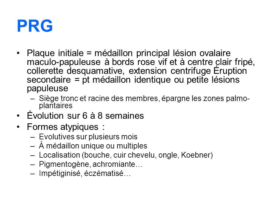 PRG Plaque initiale = médaillon principal lésion ovalaire maculo-papuleuse à bords rose vif et à centre clair fripé, collerette desquamative, extensio