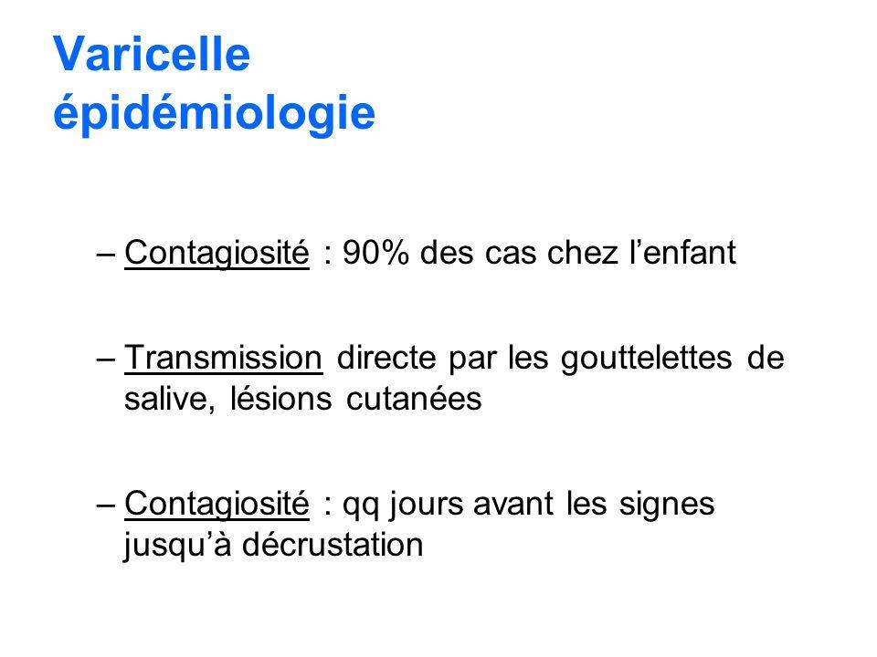 Varicelle épidémiologie –Contagiosité : 90% des cas chez lenfant –Transmission directe par les gouttelettes de salive, lésions cutanées –Contagiosité