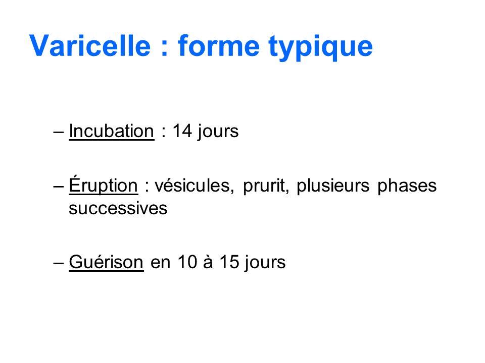 Varicelle : forme typique –Incubation : 14 jours –Éruption : vésicules, prurit, plusieurs phases successives –Guérison en 10 à 15 jours